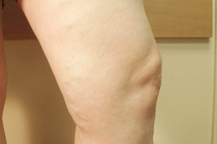 Patient after treatment for varicose veins