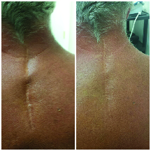 Before and after effect of scar tissue release therapy