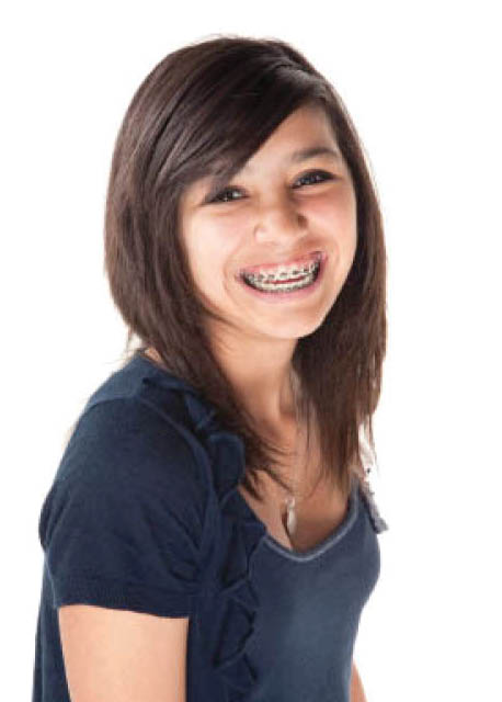 Traditional braces get you started on a great smile