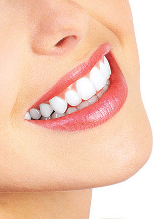 Teeth Whitening from Minnetonka Dental