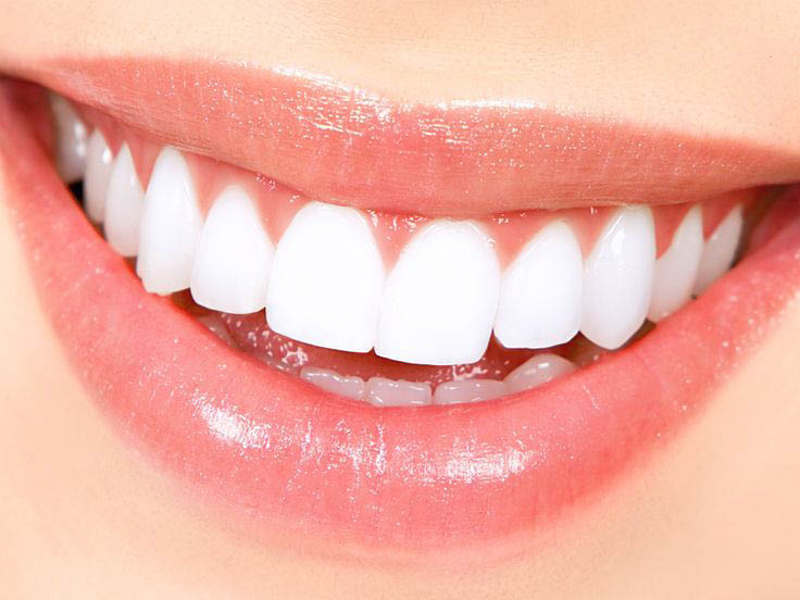 Dentist near me, Teeth Extractions, Teeth Whitening, affordable Dental
