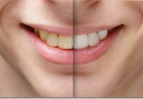 photo of before & after tooth whitening at Williamson Dental in Huntington Woods, MI