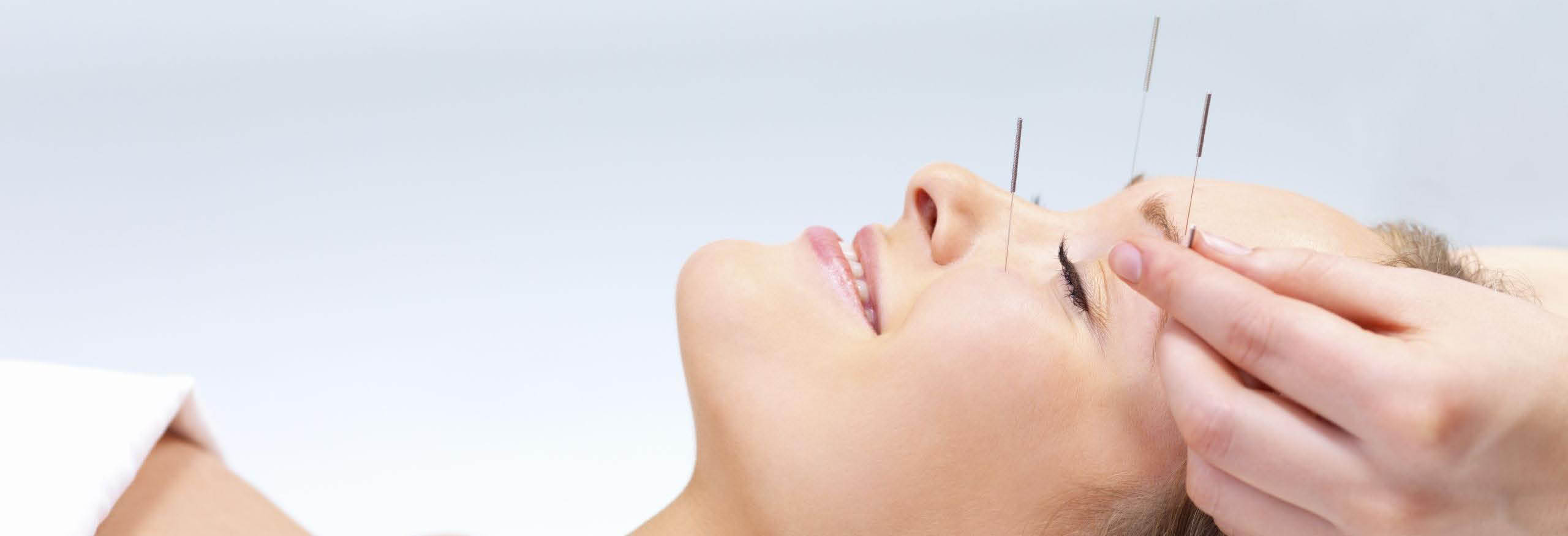 Arlington Seattle Acupuncture Massage Herb Cupping Wellness