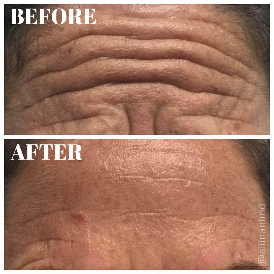 Kapolei; wrinkle reduction; anti-aging