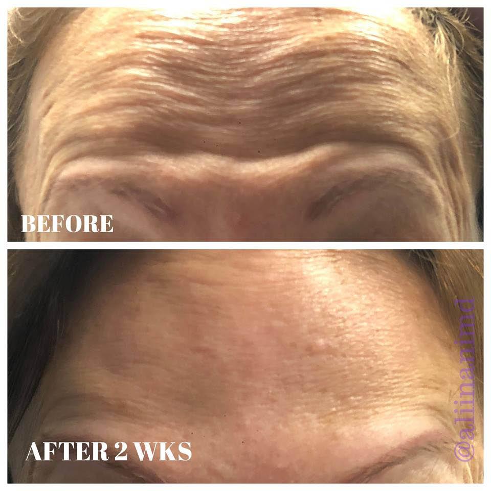 Botox injections; dermal fillers; chemical peels in Hawaii