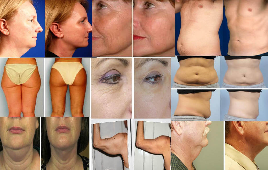 skin,care,massage,laser,botox,fillers,weight-loss,detox,facial,hydro,injections,laser,cryon,inlight,lipo,colonic,spa,scrub,microderm,micro-needling,dermaplaning,xeomin,juvaderm,vobella,radiasse,kybella,micropigmentation,aromatherapy,resurfacing,reduction