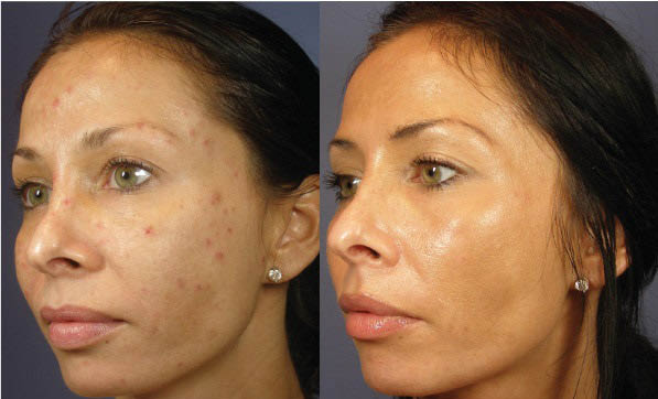 medical skin peels near me  skin peels orange county ca medical skin peels orange county ca