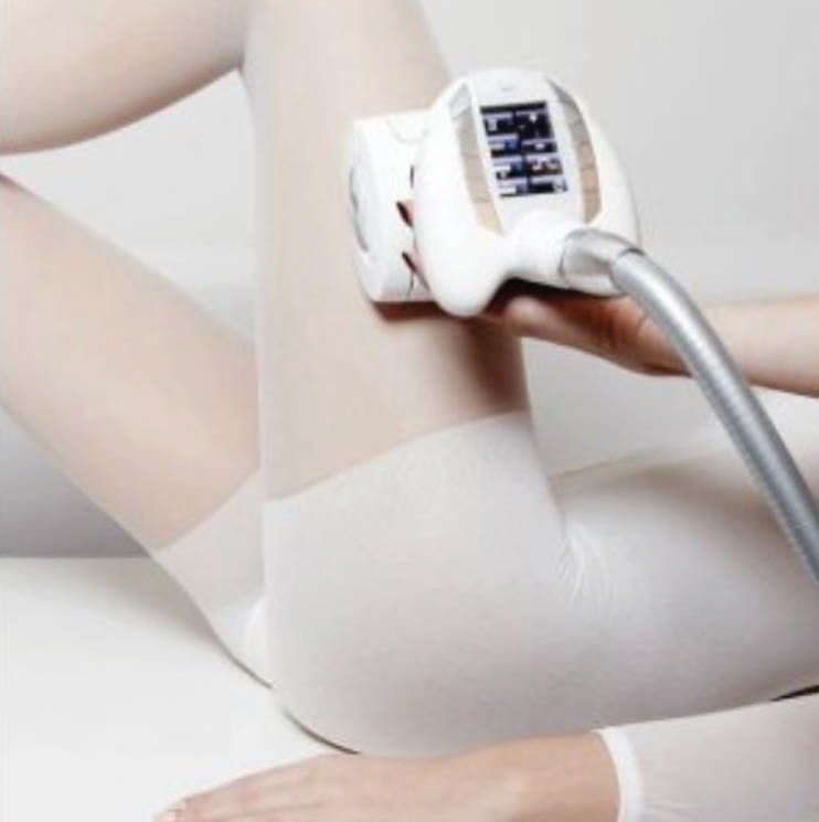 cellulite treatment in Los Angeles; Endermologie treatment on woman's outer thigh