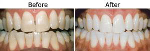 See the before and after results of teeth whitening from Beverly Hills Prestige Dental Group