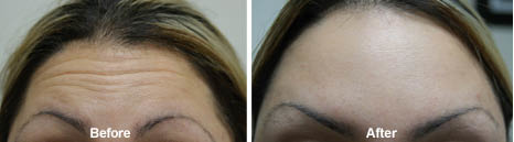 Before and after Botox treatment, forehead. Health First San Bernardino, CA