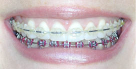 clear and metal braces used together; Gorczyca Orthodontist in Antioch, CA braces; Invisalign Teen