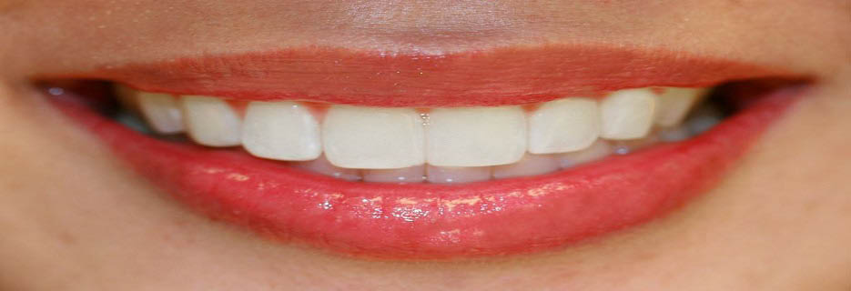California Smiles Dental Group in Reseda, CA banner ad