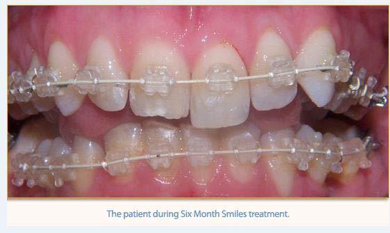 Perfect your smile with orthodontic care from California Smiles Dental Group