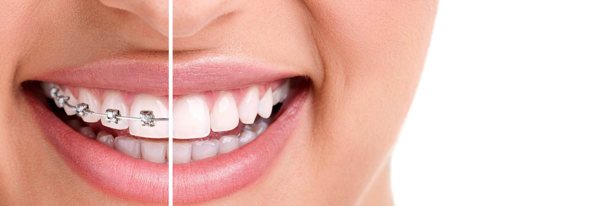 Teeth braces will give you a smile that lasts a lifetime banner