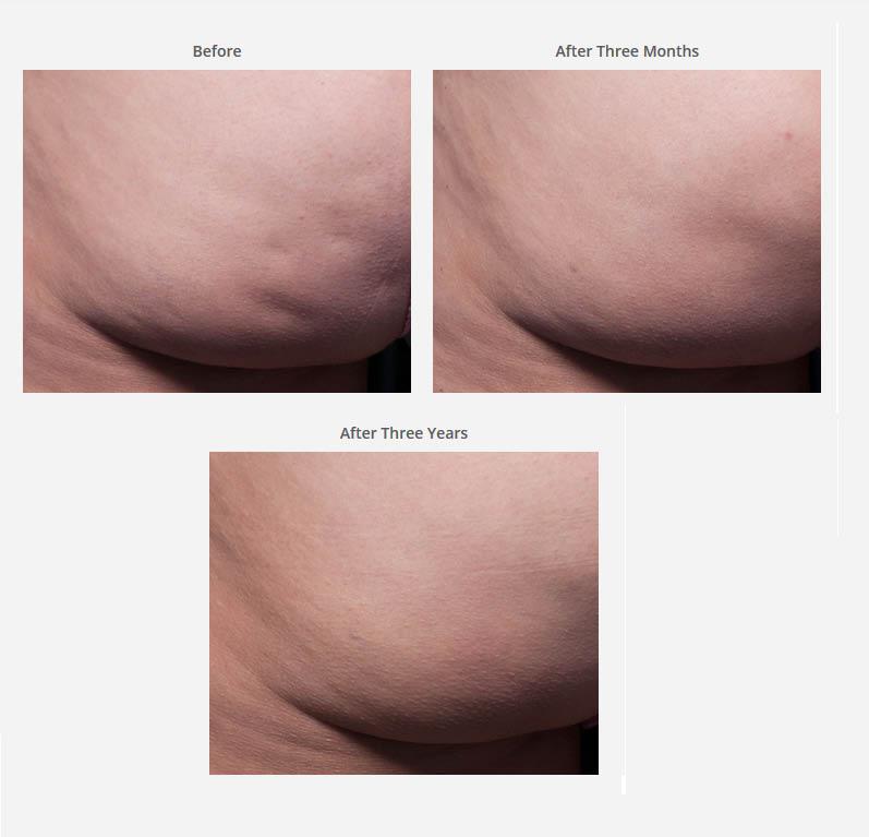 Body Contouring Treatments Phoenix, Scottsdale, Mesa, Tempe, Chandler Arizona