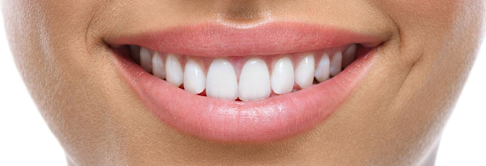 Chicago Smile Center offers teeth whitening banner