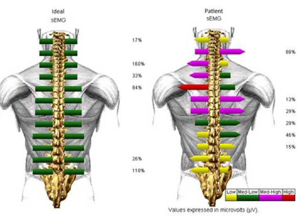Columbus Injury & Rehab Centers spine imaging