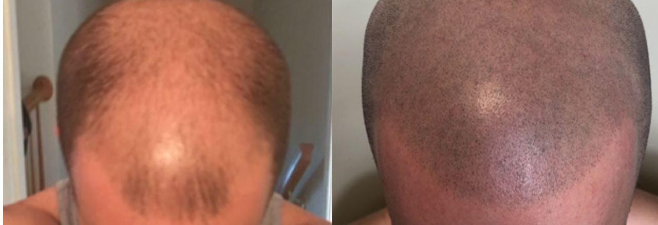 hair transplant, hair regeneration, balding, thinning hair