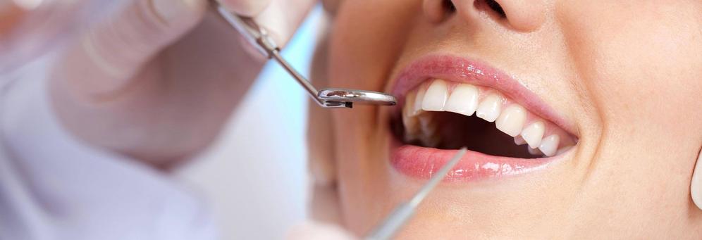 affordable dental care Palmetto Family Dental McDonough, GA