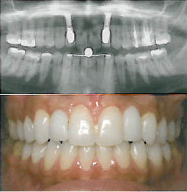 Natural-looking dental implants will bring back your healthy smile.