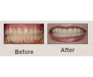 dentistry,dentures,crowns,bridges,mouth,guards,sealants,checkups,fillings,cosmetic,teeth,whitening,veneers,dental,implants,orthodontics,invisalign,periodontal,pediatric,extractions,root,canals,stabilization,oral,restorative,retainer,cleaning,gingivitis