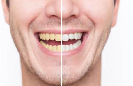 Teeth Whitening, El Sequndo CA