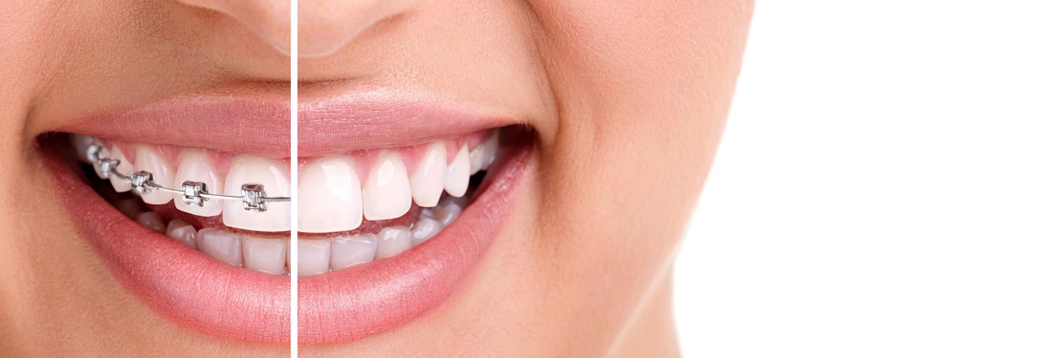 smile, braces, invisilign, teeth, mouth