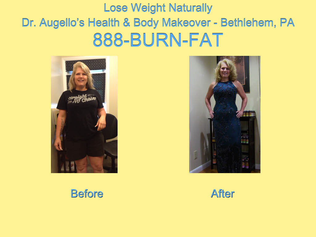 dr augello, weight loss, before after pictures, lehigh valley dietician,