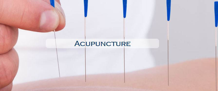 Acupuncture in process