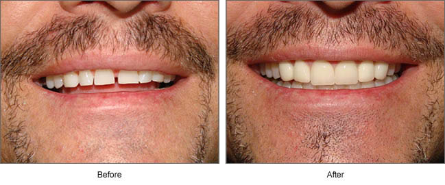 Have a gap in your teeth you would like to correct. Get a smile makeover. Easy and affordable.