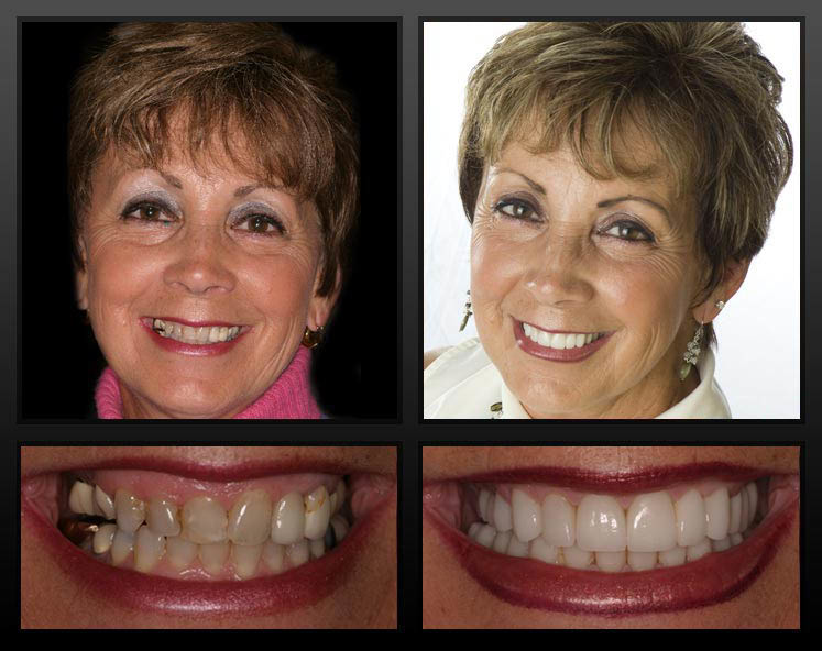Whatever your budget we can improve your smile & help you feel younger with whiter teeth. We have Snap on smiles, Veneers, Lumineers & Invisalign braces