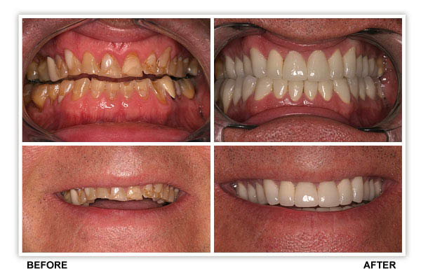 East Brewster Dental can achieve unbelievable results with today's tooth-colored fillings, veneers, crowns, bonding, Invisalign braces & teeth whitening.