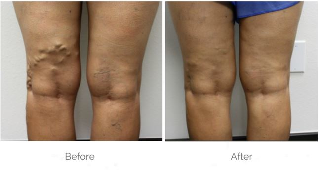 before & after vein treatment