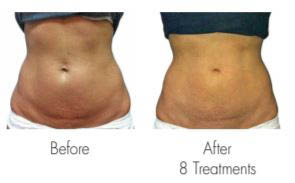 body, beauty, botox, acne, medical treatments
