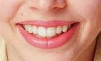 Teeth Whitening, Santa Clarita CA