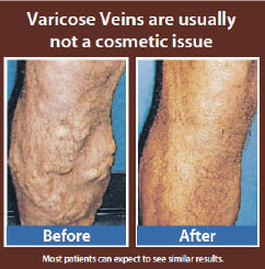 Before & after leg care fix my veins varicose vein care near me Mackay vein