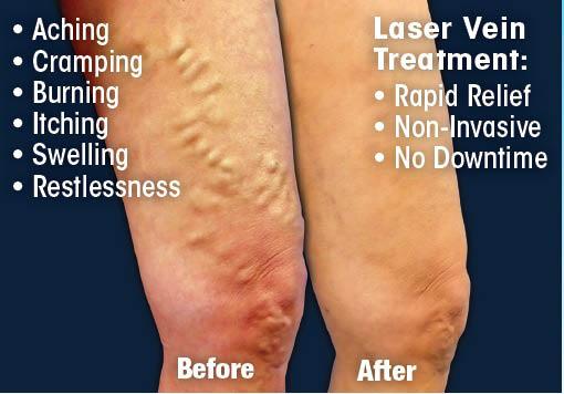 laser vein vein treatment fix my veins varicose veins spider veins varicose vein spider vein cosmetic vein