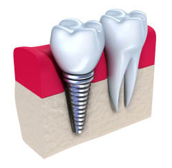 Hires dental care toledo family dentist toledo ohio dental implants sedation