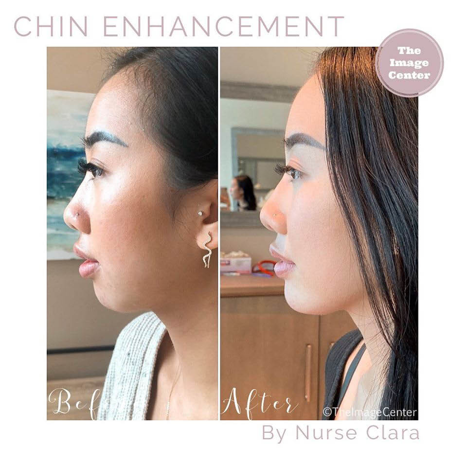 non surgical cosmetic procedures near me chin enhancement near me
