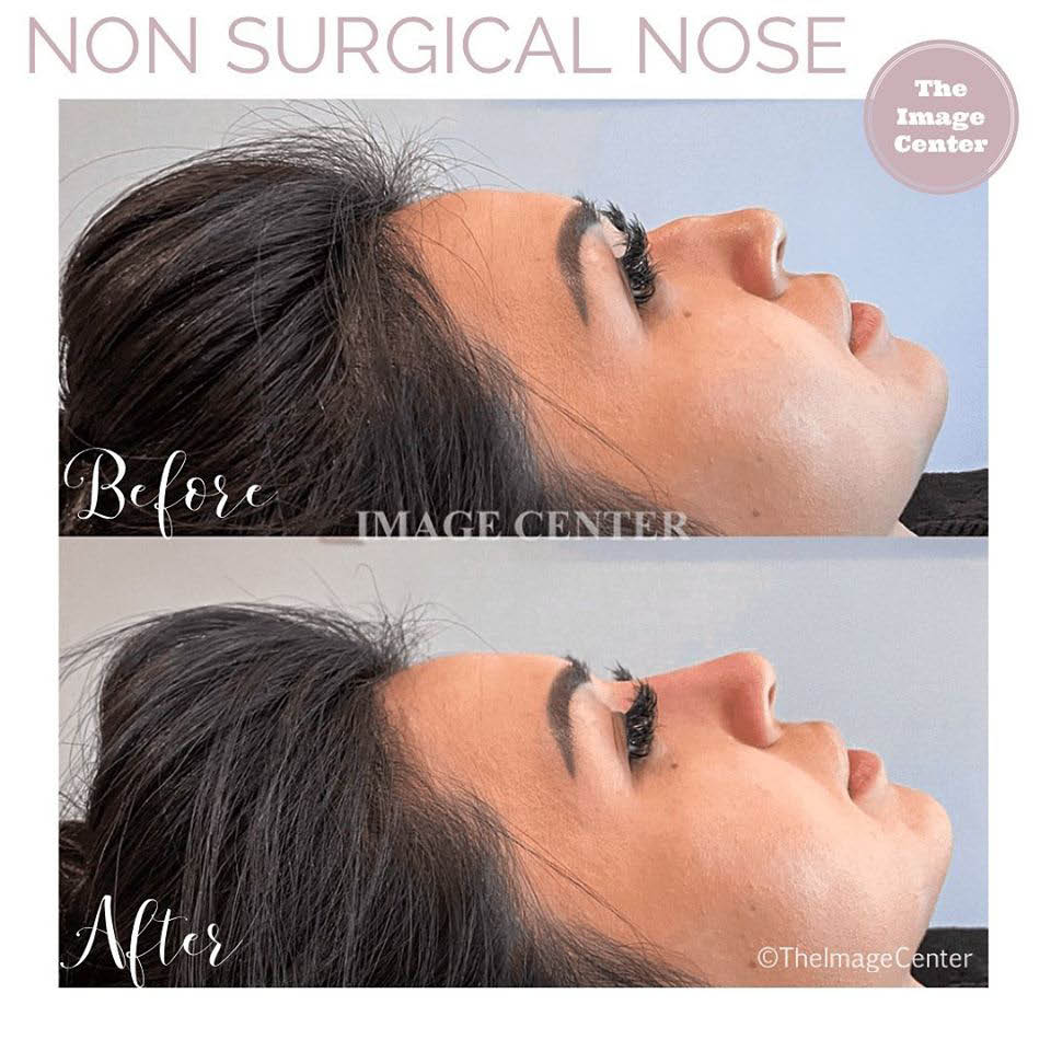 cosmetic procedures near me non surgical nose job near me