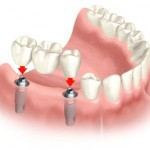Cosmetic Dentistry including implants!