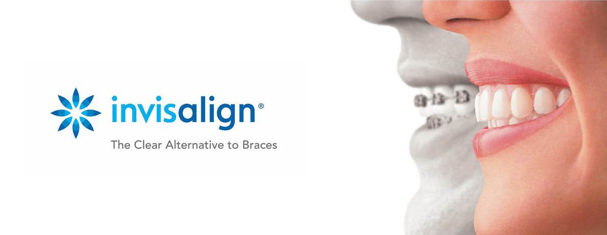 See Dr. Woolard for Invisalign braces to perfect your smile