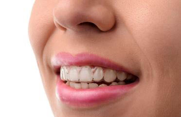 Smile of young woman wearing Invisalign invisible braces..