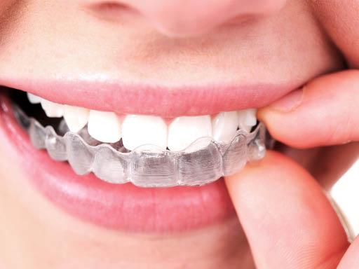 acceledent, invisalign, orthodontics, braces, family dentistry; vienna, va.