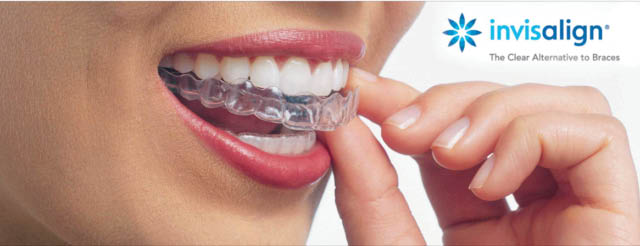 invisalign for teens and adults in tyrone georgia