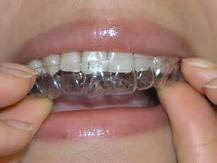 In Office Teeth Whitening and invisalign services