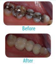 dentist, teeth, smile, repair