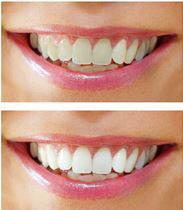 Joliet Family Dental offers in-office teeth whitening or take home teeth whitening kits
