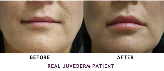 Before and after of woman's mouth and lips with Juvederm, treatment