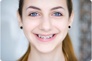 best teeth braces for adults, dentist that do braces Grand Rapids, MI